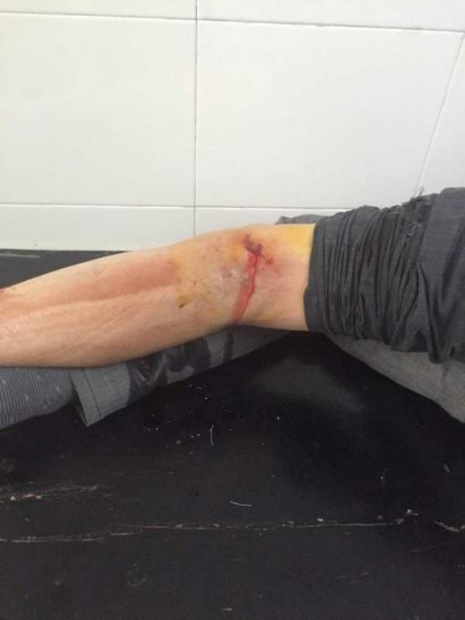 被狗咬伤   手臂咬伤   伤口出血严重   打狂犬疫苗